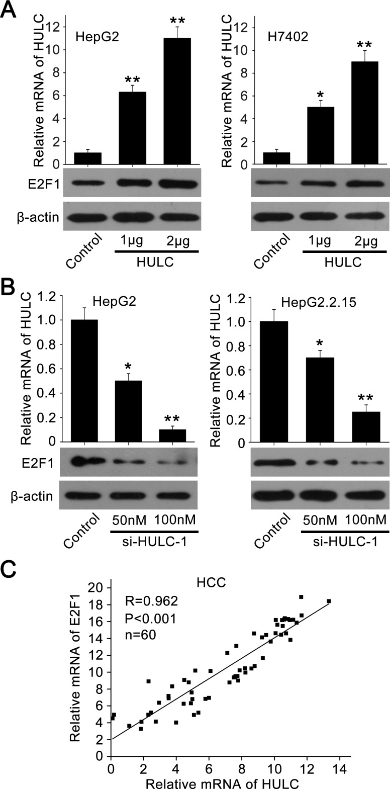 HULC is able to increase the expression of E2F1 A. , B. The expression of E2F1 was examined by Western blot analysis in HepG2 and H7402 (or HepG2.2.15) cells transfected with pcDNA3.1-HULC (or si-HULC-1). The transfection efficiency of HULC (or si-HULC-1) was detected by qRT-PCR. C. The correlation between E2F1 mRNA levels and HULC mRNA levels was detected by qRT-PCR in 60 HCC tissues ( P