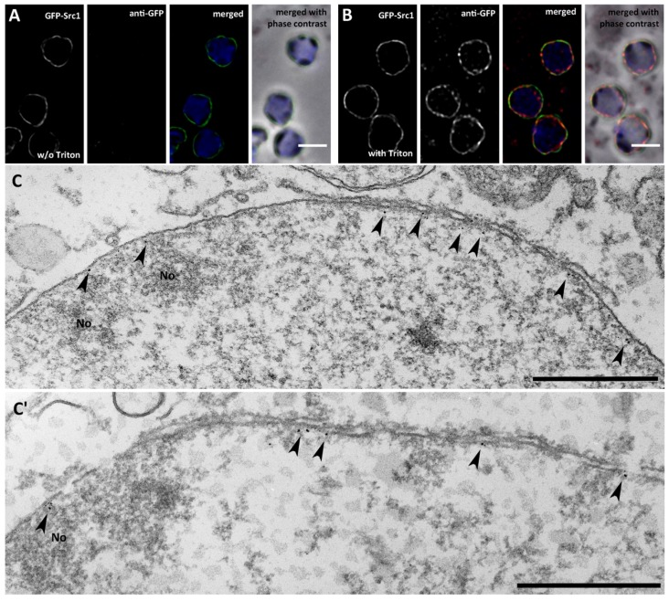 Src1 is an inner nuclear membrane protein. ( A, B ) Isolated nuclei of GFP-Src1 cells were stained with anti-GFP-antibodies [ 33 ] either in the absence ( A ) or presence ( B ) of 0.5% Triton-X100. The antibody is accessible to GFP-Src1 only upon permeabilization of the nuclear membranes. Specimens were fixed with glutaraldehyde. Bar, 2 μm. ( C, C' ) Two examples of immuno-transmission electron microscopy of isolated nuclei stained with anti-GFP/anti-rabbit nanogold. Gold particles (arrowheads) are visible only along the inner nuclear membrane. Bar, 500 nm.