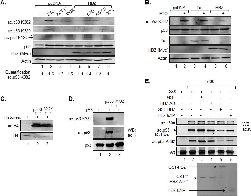 HBZ inhibits acetylation of p53 K382 A. and B. HCT116 p53 +/+ cells were transiently transfected with an HBZ, Tax or an empty expression vector and, 48 h post-transfection, were treated with etoposide (ETO), actinomycin D (ACT.D), doxorubicin (DOX) or the DMSO vehicle control (−) for 8 hours as indicated. Nuclear extracts were prepared and analyzed by Western blot using the antibodies indicated. C. Acetylation of histone H4 by p300 and MOZ. In vitro HAT assays were performed using recombinant histones (2 μM), p300 (2 nM) and MOZ-HAT (0.15 μM) and analyzed by Western blot using antibodies against histone H4 and acetylated histone H4 as indicated. D. Acetylation of p53 by p300 and MOZ. In vitro HAT assays were performed using the same concentrations of recombinant proteins as above, but with p53 (0.1 μM) replacing histones as the substrate. Reactions were analyzed by western blot using antibodies against acetylated lysine, p53 acetyl-K382 and p53. E. HBZ inhibits acetylation of p53 by p300. In vitro HAT assays were performed using recombinant p300 (2 nM), p53 (25 nM) and supplemented with GST (0.3 μM), GST-HBZ (0.3 μM), HBZ-AD (0.3 μM) or HBZ-bZIP (0.3 μM) where indicated. Reactions were analyzed by Western blot using antibodies against acetylated lysine, p53 acetyl-K382 and p53. Identical quantities from the same batch of proteins used in the HAT assay were resolved by SDS-PAGE and stained with Coomassie (lower panel).