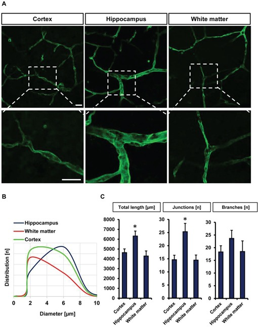 Visualization and quantification of the vasculature in different brain slice areas A. Cortex, hippocampus and white matter were candidate to monitor vascularization in different bran slice areas. Laminin antibody was utilized to stain vessels. Scale bar represents 20 μm. B. Distribution of vessels diameter (μm) in cortex, hippocampus and white matter ( n = 6). C. Quantification of different vascular parameters total vessels length, number of junctions and branches with Image J Angiogenesis tools plugin. Images with 314 μm × 314 μm size were used for quantification. Statistical analysis was performed with Student's t -test (* P