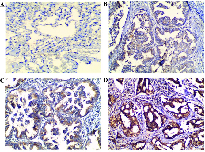 Wild-type p53-induced phosphatase 1 (Wip1) expression in normal lung and non small cell lung cancer (NSCLC) tissues using immunohistochemistry. (A) No Wip1 expression in normal lung tissue. (B) Weak (+1), (C) moderate (+2) and (D) strong (+3) Wip1 expression in NSCLC tissues. 3,3′-Diaminobenzidine and hematoxylin staining; magnification, x100.