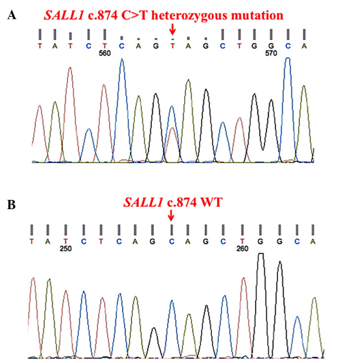 Sanger sequencing electropherograms showed that (A) the proband has the SALL1 heterozygous mutation (c.874C > T, p.Q292X), (B) which was not detected in 100 healthy Chinese controls.