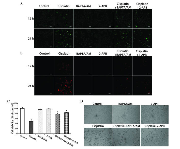 Inhibition of calcium signaling decreases the level of free Ca 2+ in the cytosol and mitochondria, and inhibits cell growth. (A) HeLa cells were treated with cisplatin (5 µg/ml) with or without BAPTA/AM (2.5 µM) and 2-APB (100 µM) for 12 and 24 h. The cells were incubated with the fluorescent calcium indicator, Fluo-4/AM. Calcium concentrations in the cytosol were observed by confocal microscopy (scale bar, 40 µm). (B) HeLa cells were treated with cisplatin (5 µg/ml) with or without BAPTA/AM (2.5 µM) and 2-APB (100 µM) for 12 and 24 h, and incubated with the fluorescent calcium indicator, Rhod-2. Calcium concentrations in the mitochondria were observed by confocal microscopy (scale bar, 30 µm). (C) HeLa cells were treated with cisplatin (5 µg/ml) with or without BAPTA/AM (2.5 µM) and 2-APB (100 µM) for 24 h. Cell viability was determined using the 3-(4,5-dimetrylthiazol-2-yl)-2,5-diphenyltetrazolium bromide assay. Data are presented as the mean ± standard deviation (n=3). *P