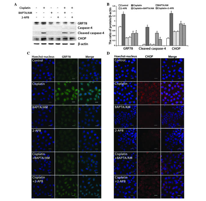 Inhibition of calcium signaling decreases cisplatin-induced ER stress-mediated apoptosis in HeLa cells. (A) Western blotting detection of ER stress proteins in HeLa cells treated with cisplatin (5 µg/ml) with or without BAPTA/AM (2.5 µM) and 2-APB (100 µM) for 12 h. (B) Quantitation of ER stress protein levels. Data are presented as the mean ± standard deviation (n=3). *P