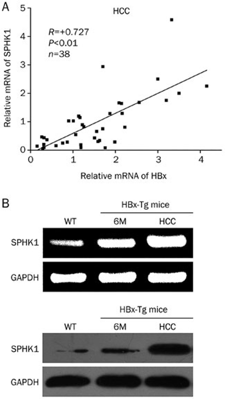 The mRNA levels of HBx are positively associated with those of SPHK1 in clinical HCC tissues. (A) The correlation between HBx mRNA levels and SPHK1 mRNA levels was detected by qRT-PCR in clinical HCC tissues ( P