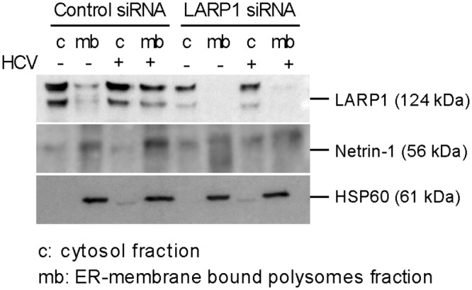 LARP1 regulates <t>Netrin-1</t> microsomal translation. Huh7.5 cells were transfected with control and LARP1-specific siRNAs, and infected by HCV at MOI 0.1 over 4 d. Cells were lysed and analyzed by immunoblotting for LARP1 knockdown as shown in S3 Fig . LARP1 depletion decreases the expression of Netrin-1 protein in microsomes in Huh7.5 cells. LARP1, Netrin-1, and HSP60 proteins were monitored for their partitioning in the cytosolic (free polysomes) and microsome (ER membrane-bound polysomes) compartments, according to the infection status of the cells through sequential extractions followed by immunoblotting. HCV core was used as an infection control.