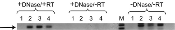 RT–PCR amplification of nifH mRNA from wood-fed P. nigrolineatus GI tract regions. After dissection, RNA was extracted from fore (lane 2), hind (lane 3) and midgut (lane 4) regions, as described in the materials and methods section. RNA (3 μg) was first treated with DNaseI in the presence of RNasin and RT–PCR was carried out using the Superscript III One-Step Platinum Taq high fidelity kit (see Methods). Complementary DNA synthesis was followed by amplification with nifH32 and nifH623 primers and a second round amplification using nifH1 and nifH2 primers as described in the materials and methods section. Reaction products were separated on a 1.5% agarose gel. RNA preparations treated with DNase in the absence of RT and amplifications without DNase and RT treatments are shown. M is a 100 bp ladder; lane 1 is a negative control that did not contain RNA.