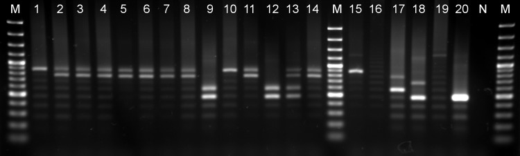 MORF2-REP profiles of Ethiopian T . evansi stocks and T . evansi and T . brucei reference strains. 1.5% agarose gel showing MORF2-REP minisatellite <t>PCR</t> <t>amplicons.</t> Lane M: 100 bp plus marker, lanes 1 to 14: Ethiopian T . evansi stocks MCAM/ET/2013/MU/01-02-04-05-06-07-08-09-10-11-13-14-15-17, lane 15: T . b . gambiense LiTat 1.3, lane 16: T . b . brucei AnTat 1.1 E lane 17: T . evansi type A (RoTat 1.2), lane 18: T . evansi type B (KETRI 2479), lane 19: T . equiperdum Dodola 940, lane 20: T . b . gambiense ABBA, lane N: negative control