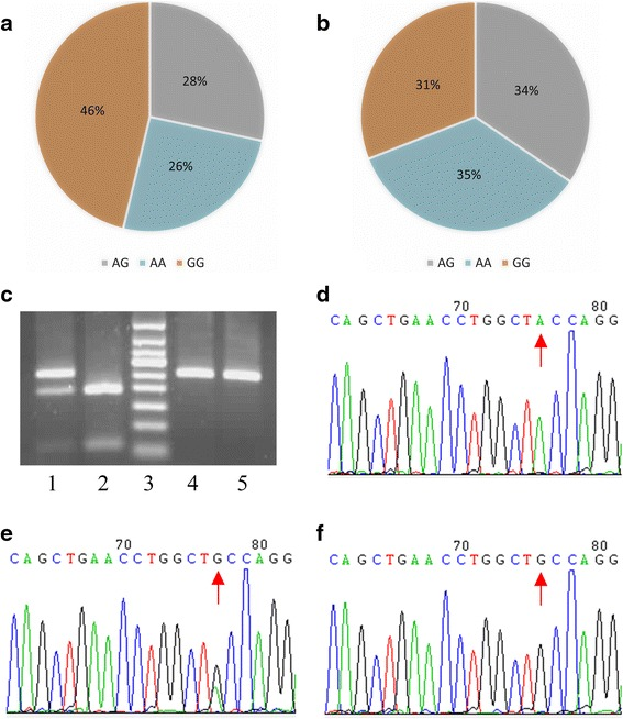 The genotype characteristic of SNP rs231775 in CTLA-4 gene in AA and HIs. a Distribution of the genotype of SNP rs231775 in AA patients ( n = 67); b distribution of the genotype of SNP rs231775 in HIs ( n = 84); c agarose gel electrophoresis results for SNP rs231775 in CTLA-4 gene, lane 1 is the AG genotype, lane 2 is the GG genotype, lane 3 is a 50 bp DNA ladder, lane 4 is the AA genotype, and lane 5 is a PCR product without TseI digestion; d sequencing results of AA genotype; e sequencing results of AG genotype; f sequencing results of GG genotype; the red arrow indicates the single-nucleotide polymorphism sites