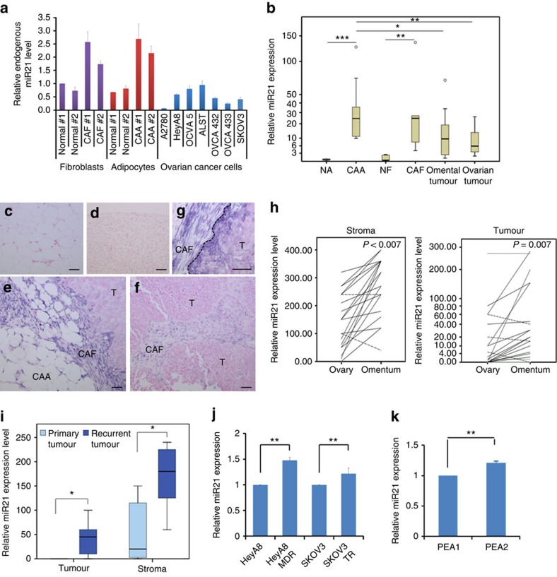 Differential miR21 expression in ovarian tumour tissue and cancer cell lines. ( a ) qRT–PCR analysis of miR21 expression in cultured normal ovarian fibroblasts, CAFs, normal adipocytes, CAAs and ovarian cancer cell lines. ( b ) qRT–PCR analysis of miR21 expression in microdissected normal adipocytes ( n =5), CAAs ( n =9), normal fibroblasts ( n =5), CAFs ( n =5) and ovarian cancer cells from omental ( n =10) and primary ovarian sites ( n =10). *** P