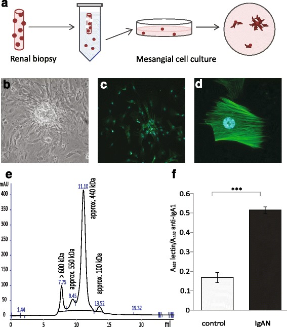 Mesangial cells were cultured from renal biopsies, characterized and treated with IgA. Schematic figure of harvest and culture of mesangial cells ( a ). Mesangial cells growing out from glomeruli ( b ). Immunofluorescence microscopy of smooth muscle actin labeling in mesangial cells. Smooth muscle actin is exclusively localized to the mesangial cells in the glomeruli. Mesangial cells cultured from glomeruli from renal biopsies were stained using an anti-smooth muscle actin antibody ( green ). Nuclei are stained blue with DAPI. Magnification 20× ( c ), 40× ( d ). The mesangial cells were negative for endothelial and podocyte markers, see Methods. IgA1 purified from human blood was run on HPLC to detect different sizes of IgA1 ( e ). A representative sandwich ELISA shows that IgA1 purified from patients with IgAN have a higher amount of gd-IgA than IgA1 purified from controls ( f )