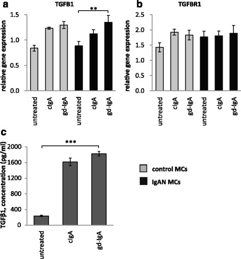 Gene expression of TGFB1 and TGFBR1 and release of TGFβ1. Mesangial cells (MCs) from patients with IgA nephropathy (IgAN) and controls were stimulated with IgA1 purified from blood from healthy controls (cIgA) or patients with IgAN (gd-IgA) or medium only for 6 h and the gene expression was investigated. Stimulation of control MCs and IgAN MCs with gd-IgA gave a significant increase in the gene expression of TGFB1 (gene coding for TGFβ1) ( a ). The gene expression for TGFBR1 (gene coding for TGF-beta receptor type-1) was not significantly affected by any of the treatments ( b ). IgAN MCs were stimulated with either cIgA or gd-IgA for 6 h and the release of TGFβ1into the cell culture medium was investigated. Both treatment with cIgA and gd-IgA resulted in an increased release of TGFβ1 compared to untreated cells ( c ). Grey bars represent control MCs, black bars represent IgAN MCs * P