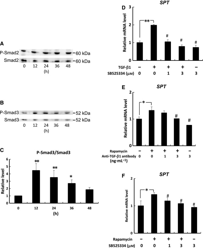 Effects of rapamycin on TGF‐β1/Smad signaling‐induced SPT mRNA expression in human keratinocytes. Cells were treated with TGF‐β1 (30 ng·mL −1 ) for 0, 12, 24, 36, or 48 h. The phosphorylations of Smad2 (Ser465/467) (A) and Smad3 (Ser423/425) (B, C) were determined by immunoblot analysis. * P
