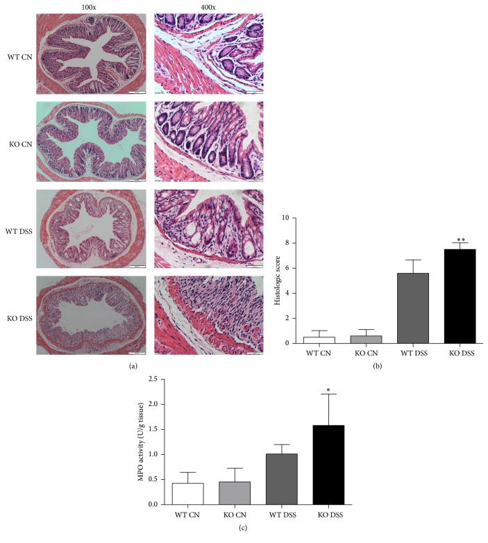 Effect of TRAF5 deficiency on the histopathology and MPO activities of colon tissues. Histological evaluation of DSS-induced colitis was performed by microscopy and H E staining. Colon sections from TRAF5 KO and WT mice were scored in a blinded fashion, as described in Section 2 . (a) Representative cross sections of the distal colon. The magnifications of the images are 100-fold and 400-fold. (b) Quantitative results of the histological analysis ( N = 10 per group). (c) MPO activities in the colons were determined as described in Section 2 ( N = 6 per group). The data are presented as the mean ± SD. ∗ p