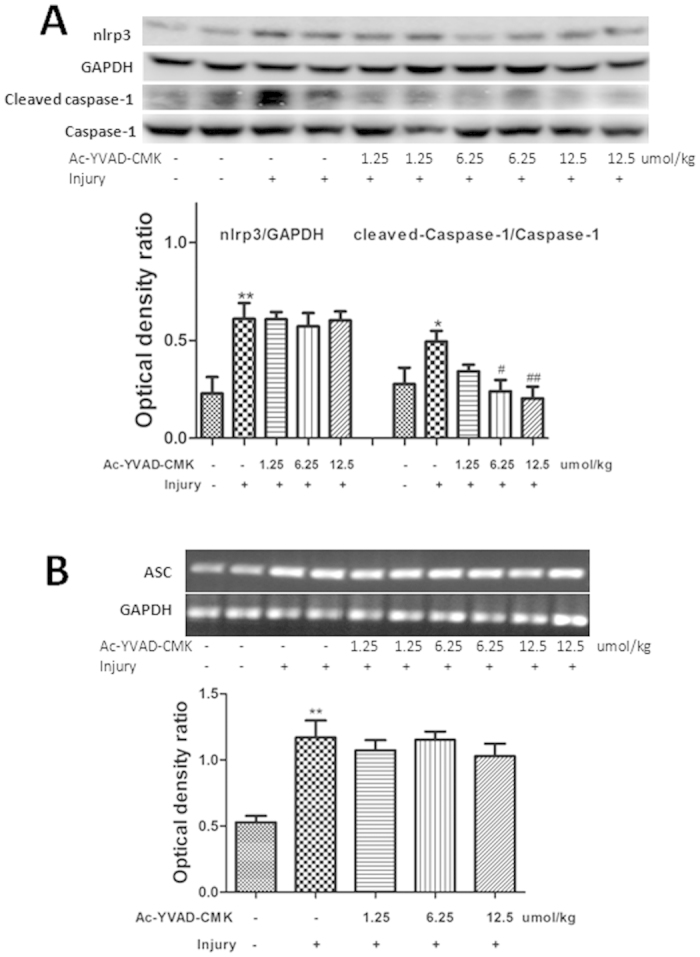 The effects of AC-YVAD-CMK pretreatment on the NLRP3 inflammasome in mice. ( A ) The protein levels of NLRP3 and cleaved caspase-1 were determined by western blotting. Protein levels were quantified by densitometry and are expressed as the optical density ratio to GAPDH. ( B ) mRNA levels of ASC were determined by RT-PCR, quantified by densitometry, and expressed as the optical density ratio to GAPDH. Data are expressed as means ± SD (n = 4–6). # P