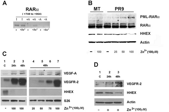 Effect of PML/RARα induction on the binding of PML-RARα to the HHEX gene promoter and on the expression of VEGF-A, VEGFR-2, and HHEX at RNA and at protein level. a PML-RARα binding to the HHEX promoter as shown by ChIP experiments. Nuclear extracts derived from PR9 cells grown for 24 h either in the absence ( c ) or in the presence of ZnSO 4 (Zn 2+ ); cells were crosslinked in vivo; after cell lysis, chromatin fragments were immunoprecipitated with anti-RARα antibody; and after DNA purification, DNA regions containing HHEX were amplified. In the figure, the HHEX PCR signal without immunoprecipitation is indicated as −A (IgG control) and, after immunoprecipitation, as +A (RARα antibody). b , c , d ZnSO 4 (Zn 2+ ) was added to PR9 cells and, at different time points and concentrations, cell aliquots were harvested and processed for evaluation of PML-RARα expression at protein level ( b ) and of VEGF-A, VEGFR-2, and HHEX expression at RNA level by RT-PCR ( c ) and at protein level by Western blotting ( d ). S26 was used for RT-PCR and β-actin for Western blotting normalization