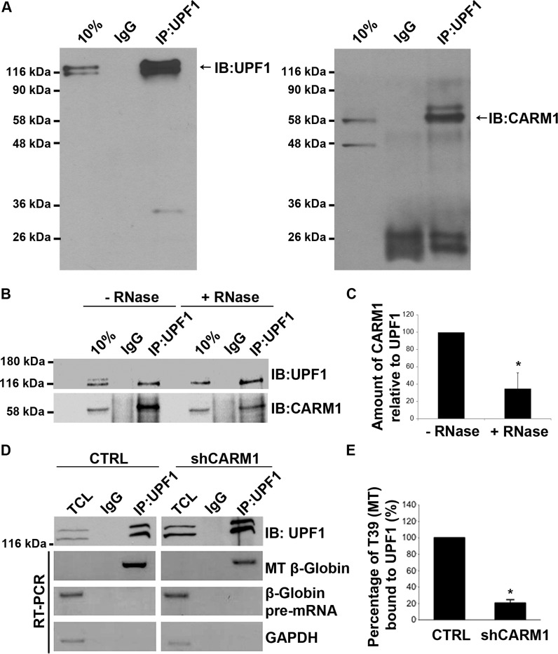CARM1 can be co-immunoprecipitated with UPF1 and the interaction between UPF1 and the β-Globin T39 mutant (MT) decreases with CARM1 knockdown. ( A ) Total cell lysates were prepared from MN-1 cells and subjected to immunoprecipitation with an IgG CTRL or UPF1 antibodies. Immunoprecipitated proteins were then analysed by western blot using antibodies against UPF1 and CARM1. ( B ) UPF1 immunoprecipitation experiments were performed with or without (w/o) pretreatment of the cell lysate with RNase A (1 μg/ml) for 30 min at 37°C. ( C ) Then, the CARM1/UPF1 ratios in response to the RNase A treatments were assessed. Values shown in the bar graph are means +/− SEM ( n = 3). ( D ) The MT reporter was transiently transfected either into the MN-1 pGIPZ CTRL or the MN-1 shCARM1 cell line. RT-PCR analysis was performed using primers specific for the MT mRNA or pre-mRNA, on total RNA extracted from the CTRL (left panel) or shCARM1 (right panel). ( E ) β-Globin mRNA levels, shown here as percent bound to UPF1, were normalized to overall immunoprecipated UPF1 levels and Gapdh mRNA was used as a loading control. Data are means +/− SEM ( n = 3).