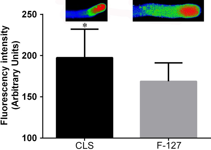 Comparison of the influence of the cell lysis solution and pluronic F-127 on <t>fluo-4/AM</t> dyeing. Fluorescence intensity using cell lysis solution as an auxiliary reagent was significantly higher ( P