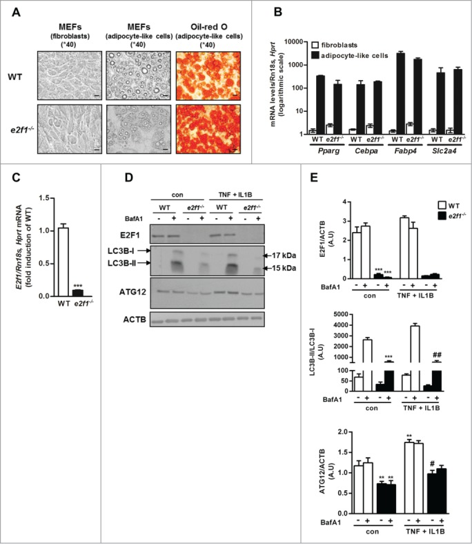 Attenuated basal and stimulated autophagy in e2f1 −/− MEF-derived adipocytes. ( A ) Differentiation of primary mouse embryonic fibroblasts (MEFs) from WT or e2f1 knockout mice into adipocyte-like cells. Confluent MEFs were exposed to differentiation medium for 14 d. At the end of differentiation period adipocyte-like cells were stained with Oil red O, and representative images were obtained at 40X magnification by light microscopy. Scale bar: 20 µm. ( B ) Quantitative real-time PCR analysis of 5 adipogenic genes in fibroblasts or adipocyte-like cells from WT and e2f1 −/− . Each transcript expression was normalized to Rn18s and Hprt/Hprt1 (hypoxanthine guanine phosphoribosyl transferase) mRNA levels. ( C ) Quantitative real-time PCR analysis of E2f1 mRNA levels in WT versus e2f1 −/− . ( D ) e2f1 −/− and WT adipocyte-like cells were treated, in full (serum-containing) medium, with TNF (10 ng/ml) + IL1B (10 ng/ml) for 24h and subjected to western blot analysis. Shown are representative blots of n=3 independent experiments, with their densitometry analysis ( E ). ACTB was used as a loading control. ***, P