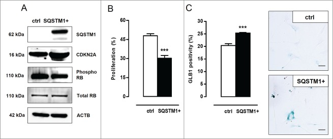 SQSTM1 accumulation links defective VSMC autophagy to senescence. ( A ) Atg7 +/+ VSMCs were transfected with 5 µg plasmid DNA encoding SQSTM1 (SQSTM1+). Four d after transfection, VSMCs were analyzed for SQSTM1, CDKN2A, phospho RB and total RB expression by western blotting. ( B , C ) SQSTM1 overexpressing VSMCs were incubated with BrdU ( B ) to examine proliferation capacity (***, P