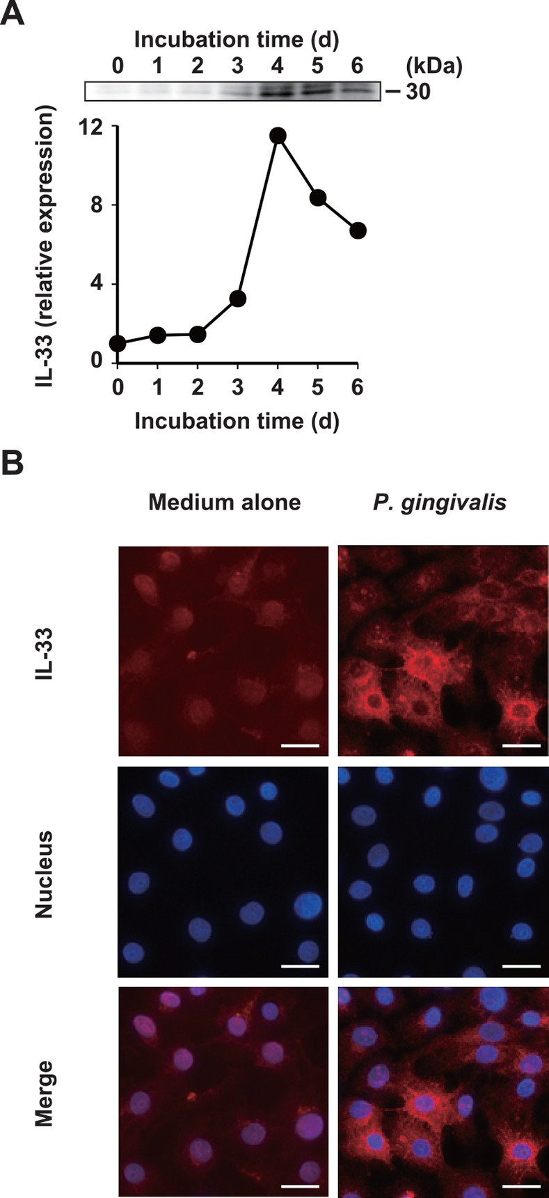 P . gingivalis increases IL-33 protein expression in gingival epithelial cells. (A) Ca9-22 cells were stimulated with 50 μg/ml of whole P . gingivalis W83 cells for the indicated periods. Cell lysates were analyzed by Western blotting with an anti-human IL-33 mAb. Expression levels of IL-33 were quantified by densitometry using ImageJ software and normalized to medium alone. (B) Ca9-22 cells were stimulated with 50 μg/ml of whole P . gingivalis W83 cells for 4 d, and intracellular IL-33 protein was stained with PE-conjugated anti-human IL-33 mAb. Nuclei were stained with DAPI. Bar = 25 μm. Data are representative of three independent experiments.