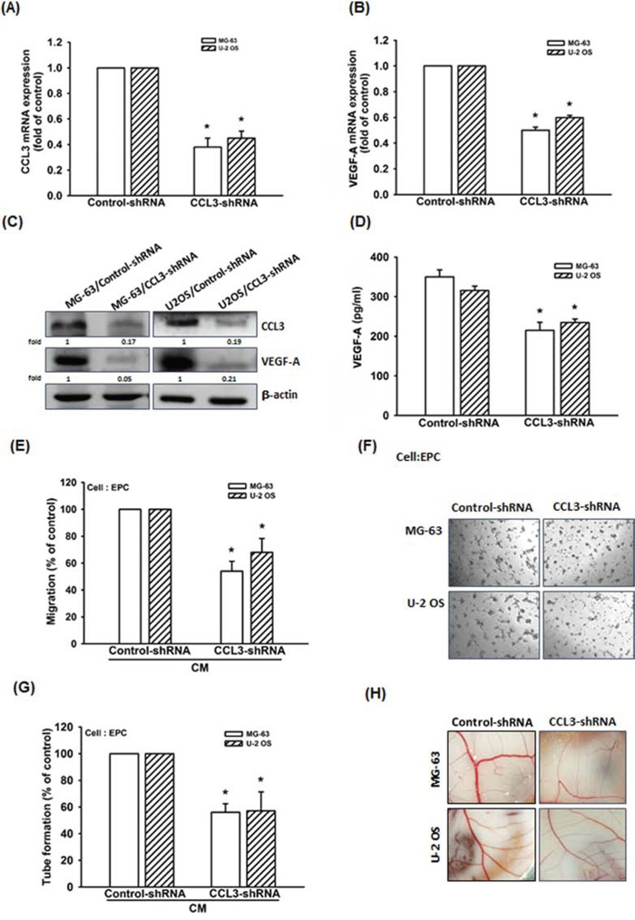 Knockdown of CCL3 decreases VEGF-A expression and inhibits angiogenesis in human osteosarcoma cells A-D. The mRNA and protein expression of CCL3 and VEGF-A in Control- or CCL3-shRNA osteosarcoma cells were detected by RT-qPCR, western blot, and ELISA. E F. The culture medium were collected as CM and then applied to EPCs for 24 h. The cell migration and capillary-like structure formation in EPCs was examined by Transwell and tube formation assay. G. Quantitative results of EPC tube formation assay. H. Chick embryos were incubated with osteosarcoma CM for 4 days, and then photographed with a stereomicroscope. Each experiment was done in triplicate. Results are expressed as mean ± S.E.M. * P