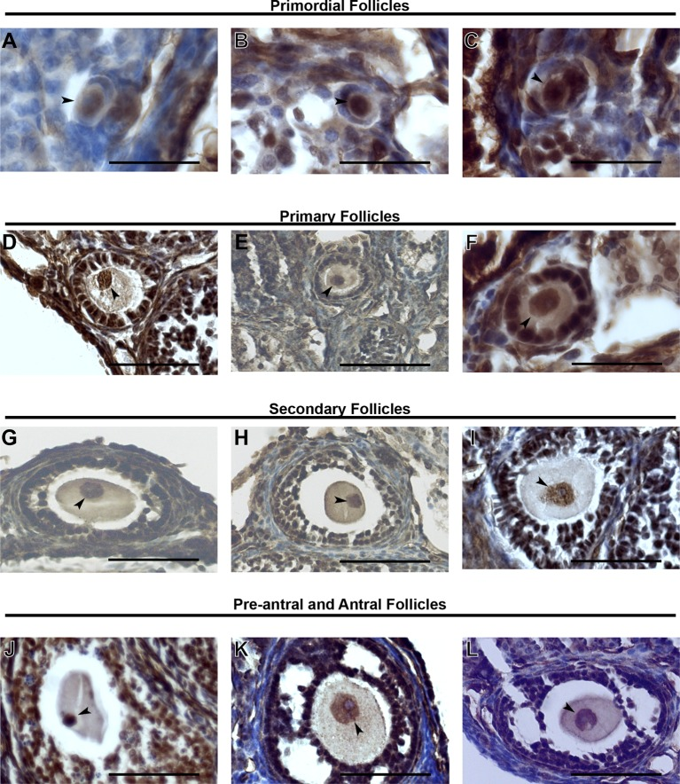 KDM1A expression in stged oocytes. ( A–L ) Immunohistochemistry (IHC) of primordial follicles ( A–C ), primary follicles ( D–F ), secondary follicles ( G-I ) and pre-antral and antral follicles ( J–L ) stained with anti-KDM1A(brown) antibody and hematoxylin (blue). The oocyte nucleus is indicated with black arrowheads. Scale bars represent 50 μm. DOI: http://dx.doi.org/10.7554/eLife.08848.004