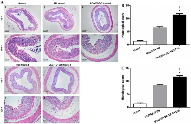 A , Assessment of histological scores in the different groups. Histology of normal tissue is shown in panels a and d , acute colitis was induced with DSS in DSS-treated mice (panels b and e ); in AD-VEGF-C-treated mice (panels c and f ); in PBS-treated mice (panels g and i ); and in VEGF-C156S-treated mice (panels h and j ). DSS-treated mice showed significantly greater histological damage (cellular infiltration, goblet cell depletion, damage to crypt architecture and submucosal edema) ( A: b , e , g , i ) compared to normal mice. VEGF-C-treated mice exposed to DSS showed significantly higher histological scores with more severe histological damage compared to control DSS-treated mice, both in the AD-VEGF-C ( B , P