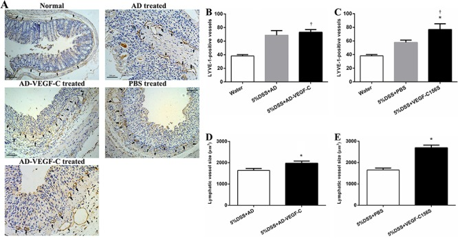 Immunohistochemical results for lymphatic remodeling in acute colitis ( A ). Comparison of lymphatic vessel density (LVD) between AD-VEGF-C treated and control mice ( B ) and between AD-VEGF-C156S-treated and control mice ( C ). AD-VEGF-C did not induce an increase in LVD (P=0.50), whereas VEGF-C156S induced a 1.3-fold increase in LVD compared to PBS-treated mice. Comparisons of lymphatic vessel size between AD-VEGF-C-treated and DSS-treated mice are shown in panel D and between AD-VEGF-C156S-treated and PBS-treated mice are shown in panel E . Both AD-VEGF-C and VEGF-C156S-treated mice had significantly greater lymphatic vessel size compared to control mice (both P