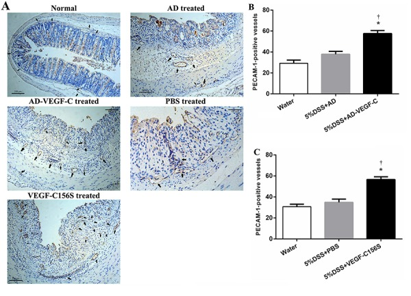 Immunohistochemical results for blood vessel remodeling in acute colitis ( A ). Comparison of microvessel density between AD-VEGF-C treated and DSS-treated mice ( B ) and between AD-VEGF-C156S-treated and PBS-treated mice ( C ). Both AD-VEGF-C and VEGF-C156S induced a significant increase in microvessel density compared to DSS-treated mice (both P