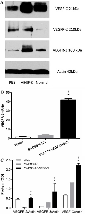 A , Western blot of VEGF-C, VEGFR-2 and VEGFR-3 in the different experimental groups. B , Comparison of VEGFR-3 mRNA expression detected by quantitative real-time RT-PCR. VEGFR-3 mRNA levels were significantly upregulated in VEGF-C156S-treated mice compared to DSS-treated mice (P
