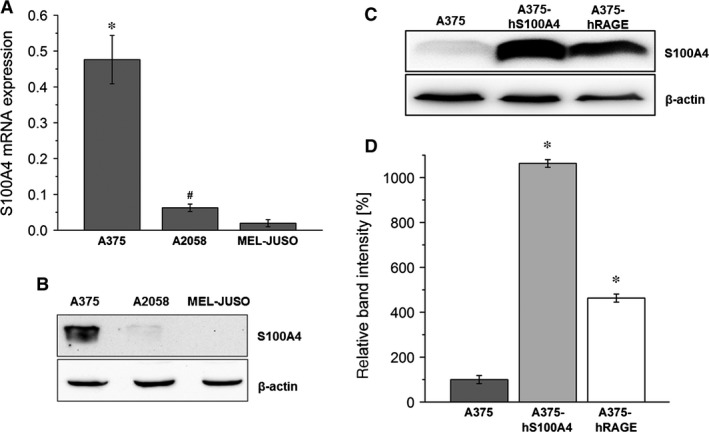 Expression and synthesis of S100A4. ( A ) Relative mRNA expression of S100A4 in A375, A2058 and MEL ‐ JUSO cell lysates was analysed by quantitative real‐time RT ‐ PCR . Displayed are the 2 −ΔCt values, representing the S100A4 gene expression normalized to the β‐actin endogenous reference gene (mean ± S.E.M., n ≥ 6, * P