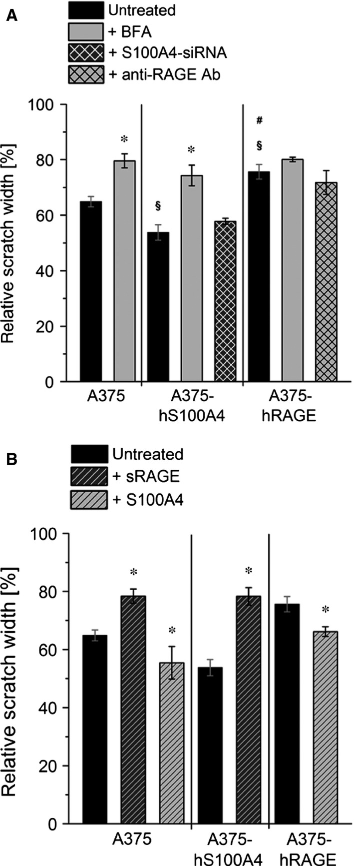 Regulation of cell motility by S100A4‐ RAGE interaction. Relative scratch widths of wild type A375, A375‐hS100A4, and A375‐ hRAGE cells either ( A ) untreated, treated with BFA , S100A4‐si RNA , and blocking Anti‐ RAGE antibody, or ( B ) treated with fivefold molar excess (150 ng/ml) of sRAGE , fivefold (150 ng/ml; in A375 cells) or 100‐fold molar excess (3000 ng/ml) of S100A4 (in A375‐ hRAGE cells) are shown. Initial scratch width was set as 100% (mean ± S.E.M., n ≥ 3, * P