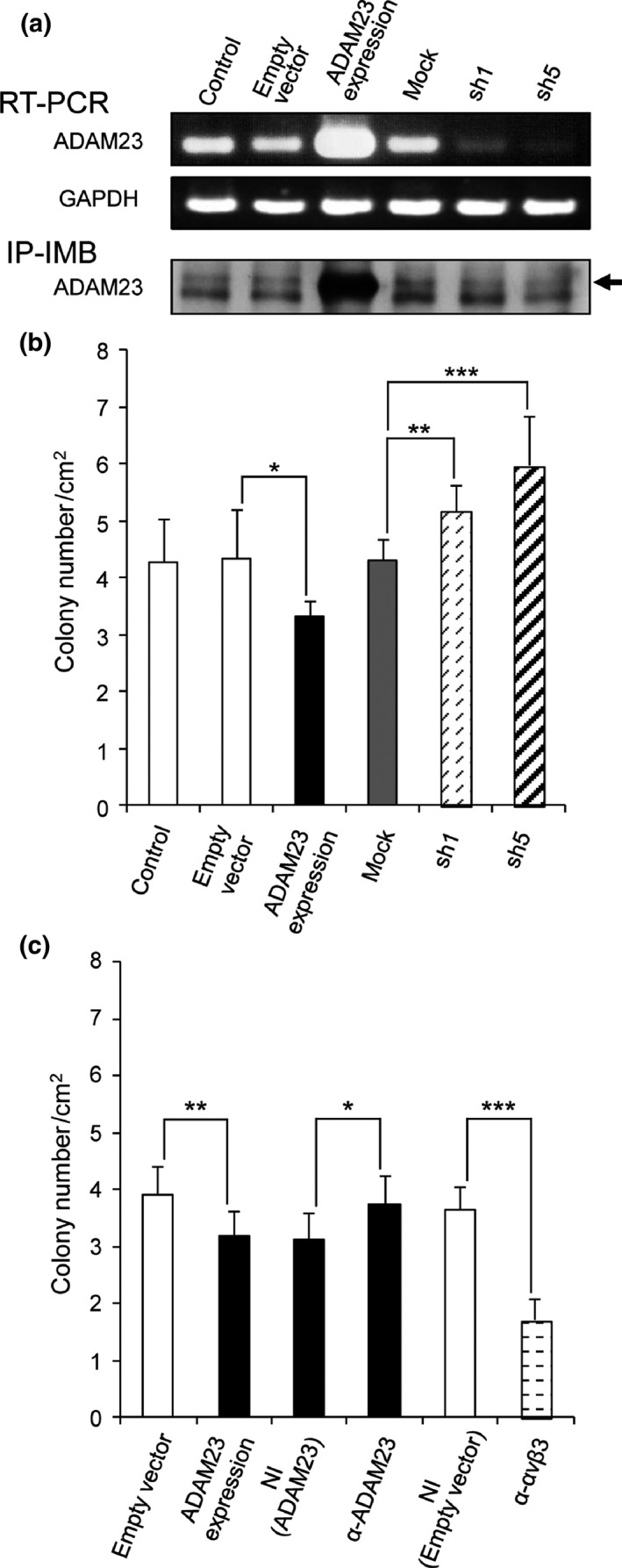 Effects of ADAM 23 expression, anti‐ ADAM 23 antibody and anti‐αvβ3 integrin antibody on colony formation. (a) Expression of ADAM 23 in A549 cells (control) or A549 transfectants with empty vectors, ADAM 23 expression vectors, non‐targeting mock vectors or ADAM 23‐targeting lentiviral vectors (sh1 and sh5) by RT ‐ PCR and by immunoblotting of the immunoprecipitates ( IP ‐ IMB ). Arrow indicates ADAM 23 and the lower band is a non‐specific protein band. (b) Colony formation by control A549 cells (control) and A549 cells transfected with empty vectors, ADAM 23 expression vectors, non‐targeting vectors (mock) or ADAM 23‐targeting vectors (sh1 and sh5) was assayed ( n = 6). (c) Colony formation by A549 cells transfected with empty vectors or ADAM 23 expression vectors, ADAM 23 transfectants treated with non‐immune IgG ( NI , ADAM 23) or anti‐ ADAM 23 antibody (α‐ ADAM 23), and empty vector transfectants treated with non‐immune IgG ( NI , empty vector) or anti‐αvβ3 integrin antibody (α‐αvβ3) was determined ( n = 6). Bars, mean ± SD . * P