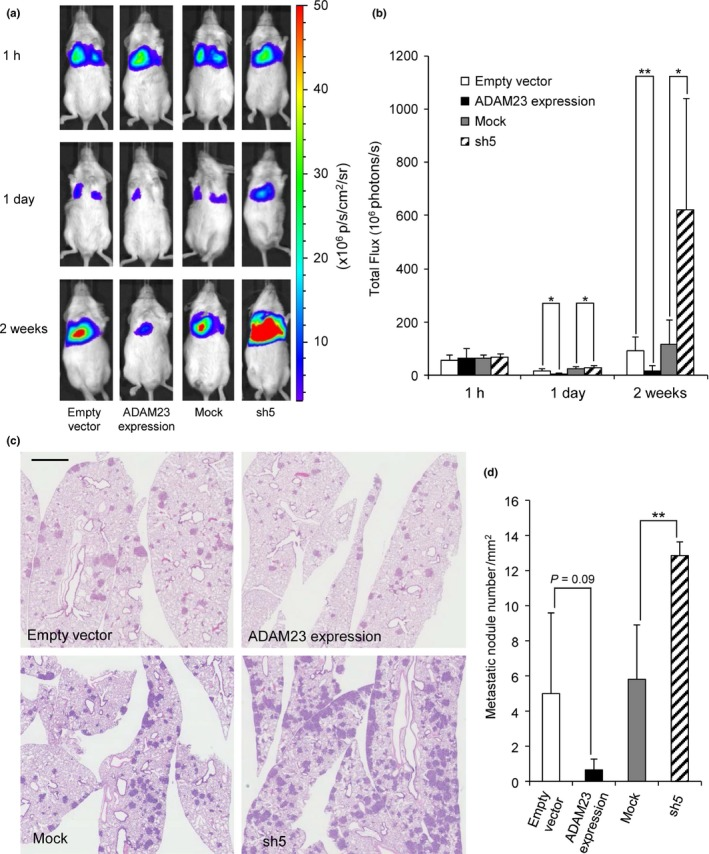 Lung metastasis in NOD / SCID mice after i.v. injection of A549 ffLuc‐cp156 transfectants. (a) Lung metastasis of the transfectants with empty vectors, ADAM 23 expression vectors, mock vectors or sh RNA vectors (sh5) was monitored at 1 h, 1 day and 2 weeks by bioluminescence imaging ( n = 6 per group). Representative mice of each group are shown. (b) Photon counts were analyzed ( n = 6). (c) Representative microscopic views of the lung sections. Hematoxylin‐positive blue‐colored nodules indicate metastatic foci. Bar, 1 mm. (d) Evaluation of lung metastasis by calculating the numbers/mm 2 ( n = 3). Bars, mean ± SD . * P