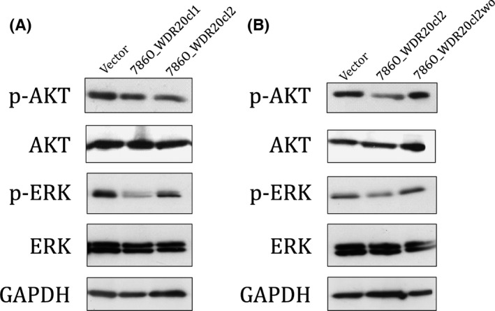 WDR 20 suppresses the phosphorylation of protein kinase B ( AKT ) and ERK in renal cell carcinoma cells. At 72 h after plating, the vector, 786O_ WDR 20 cl1, and 786O_ WDR 20 cl2 (A) or the vector, 786O_ WDR 20 cl2, and 786O_ WDR 20cl2wo (B) were subjected to Western blot analysis using antibodies against the phosphorylated form of AKT (Ser473), total AKT , the phosphorylated form of ERK (Thr202/Tyr204), total ERK , and GAPDH .