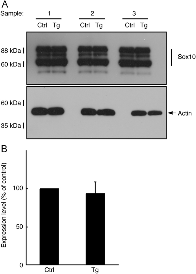 Expression of <t>Sox10</t> was comparable in transgenic mice and controls. (A) Tissue lysates ( n =3) from 3-day-old sciatic nerves of transgenic (Tg) and control (Ctrl) mice were used for immunoblotting with an anti-Sox10 or actin antibody. (B) The scanned bands were densitometrically analyzed for quantification.