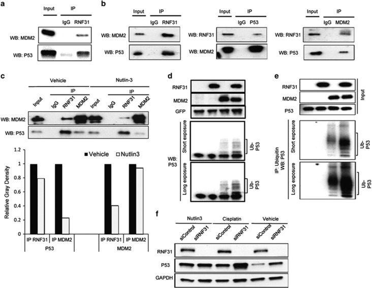 RNF31 associates with p53/MDM2 complex and increases p53 polyubiquitination and degradation in an MDM2-dependent manner. ( a ) Co-immunoprecipitation (Co-IP) assays reveal associations between endogenous RNF31 and the p53/MDM2 complex in MCF-7 cells. IgG was used as control. ( b ) RNF31 associates with the p53/MDM2 complex in HEK293 cells. Cells were seeded in 10-cm dishes. After 24 h, cells were transfected with 2 μg myc-MDM2 plasmid, 2 μg p53 plasmid and 2 μg Flag-RNF31 plasmid. After another 24 h, cells were collected. Co-IP was performed using antibodies as indicated. ( c ) Nutlin-3 does not affect the association between RNF31 and p53. MCF-7 cells were treated with vehicle or Nutlin-3 for 2 h. Co-IP was performed using antibodies as indicated. IgG was used as negative control for IP. IP of MDM2 was used as control for Nutlin-3 function. ImageJ was applied to quantify p53 and MDM2 band densities. ( d ) RNF31 facilitates p53 polyubiquitination. HEK293 cells were transfected with 0.5 μg each of the Flag-RNF31, myc-MDM2 and p53. Green fluorescent protein (GFP) was used as the transfection control. After 24 h, MG132 (10 μ M ) was added. Four hours later, whole-cell extracts were prepared for western blot analysis. ( e ) RNF31 facilitates interaction between p53 and ubiquitin. HEK293 cells were transfected with 0.5 μg each of the Flag-RNF31, myc-MDM2 and p53. After 24 h, MG132 (10 μ M ) was added. Four hours later, whole-cell extracts were prepared and thereafter subjected to immunoprecipitation using ubiquitin antibody. Western blot analysis using p53 antibody was used to detect ubiquitinated p53 forms. The predicted molecular weight of polyubiquitinated p53 is indicated. ( f ) The effect of RNF31 on p53 stability is dependent on interaction between p53 and MDM2. MCF-7 cells were transfected with siRNF31 or siControl and treated with vehicle, 10 μ M cisplatin or 10 μ M nutlin-3 for 24 h. p53 and RNF31 levels were determined by western blot analysis. Glyceraldehydes 