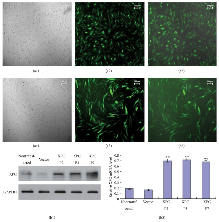 Establishment of XPC overexpression DPCs model. Expression of pCDH-CMV-XPC-EF1-copGFP plasmid in HEK293T cells and DPCs at P2 (a1–a6). Strong green fluorescence was detected in HEK293T cells (a2, ×50) and DPCs (a5, ×100) after transfection. Combined figures of the bright field and fluorescence figure (a3, a6). Western blot and real-time PCR showed that the expression of XPC was enhanced in XPC+/DPCs at P2 at both protein and mRNA level compared with vector group, and XPC maintained high expression level in DPCs at P3 and P7 ( ∗∗ p