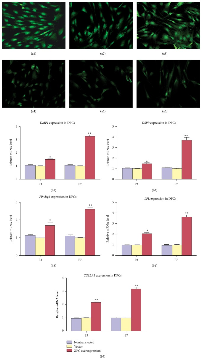 Effect of XPC on the multilineage differentiation capability of DPCs after transfection. After 21 d of multilineage differentiation induction, immunofluorescent staining indicated that DSPP (a1), LPL (a2), and collagen type II (a3) were extensively expressed in DPCs at P7 with XPC overexpression, strongly expressed in the nucleus and moderately expressed in the cytoplasm of DPCs. However, DSPP (a4), LPL (a5), and collagen type II (a6) revealed weak expression in the nucleus and cytoplasm of DPCs at P7 without transfection. Real-time PCR indicated that mRNA expression level of odontogenic markers ( DMP1, DSPP ), adipogenic markers ( PPARγ2, LPL ), and chondrogenic markers ( collagen type II ) increased significantly in DPCs at P3 and P7 with XPC overexpression compared with vector groups (b1–b5).