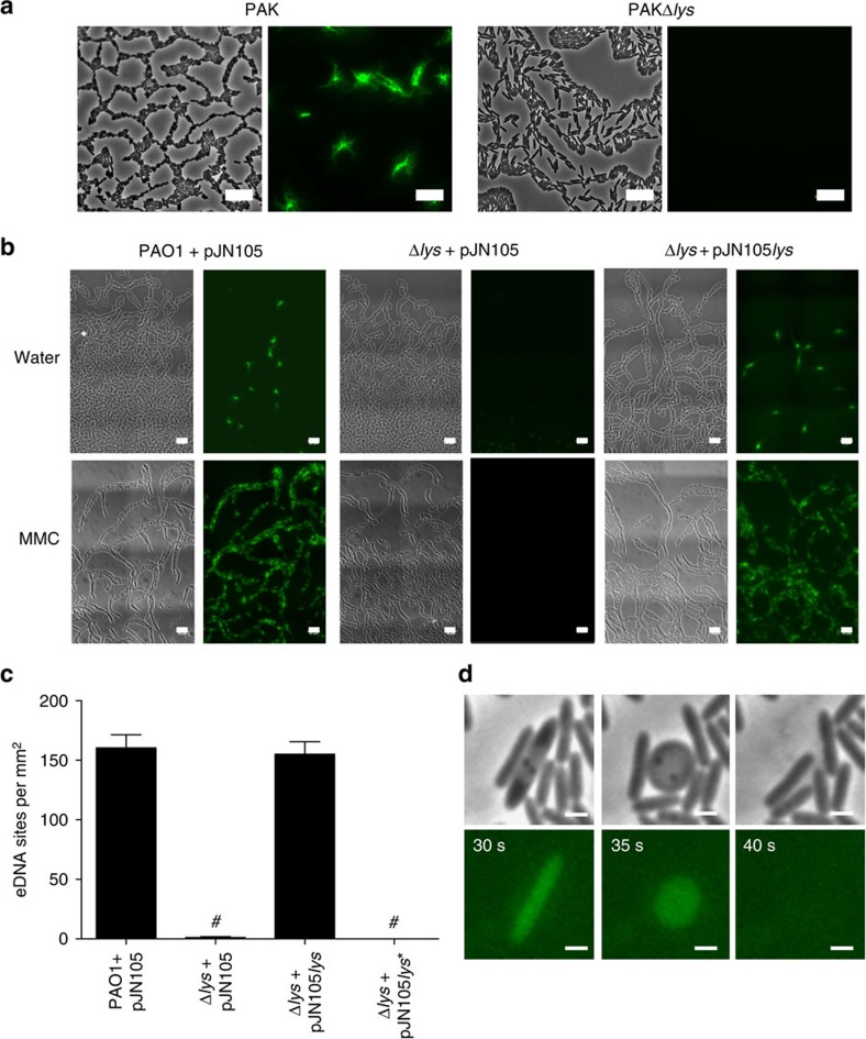 Pyocin endolysin Lys is required for eDNA release in interstitial <t>biofilms</t> under inducing and non-inducing conditions. ( a ) and ( b ) Phase-contrast (left) and TOTO-1-stained eDNA (green, right) of interstitial biofilms of ( a ) PAK and PAKΔ lys and ( b ) PAO1 and PAO1Δ lys containing either pJN105 (vector control) or pJN105 lys cultured in the presence of filter discs saturated in water or MMC; scale bar, 10 μm. ( c ) Lys catalytic activity is required for eDNA release in P. aeruginosa PAO1 interstitial biofilms; n =30; mean±s.e.m. # P