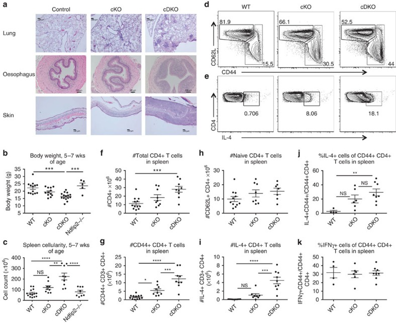 Ndfip2 deficiency exacerbates inflammation in Ndfip1 fl/fl CD4Cre+ mice. ( a ) H E-stained sections of oesophagus, lung and skin from representative 8-week-old control, Ndfip1 fl/fl CD4 Cre+ (cKO) and Ndfip2 −/− Ndfip1 fl/fl CD4 Cre+ (cDKO) mice (bar represents 100 μm). ( b , c ) Body weight ( b ) and ( c ) spleen count of 5–7-week-old WT, cKO, Ndfip2 −/− and cDKO mice. Mean±s.e.m. n =5–15 mice. ( d , e ) Representative flow cytometry analysis of splenic CD3+CD4+ T cells, showing ( d ) expression CD44 and CD62L and ( e ) intracellular levels of IL-4 after ex vivo stimulation with PMA/ionomycin in the presence of BFA. ( f – i ) Quantification of ( f ) the number of CD4+ T cells, ( g ) naive CD62L high CD4+ T cells, ( h ) CD44+ CD4+ T cells and ( i ) IL-4+ CD4s from spleen analysed by flow cytometry. Mean±s.e.m., n =7–12 mice. ( j , k ) Quantification of percent IL-4+ or IFNγ+ CD4+ T cells among CD44 high T cells. Mean±s.e.m., n =4–7 mice. P values calculated by one-way ANOVA with Holm–Sidak test for multiple comparisons: * P