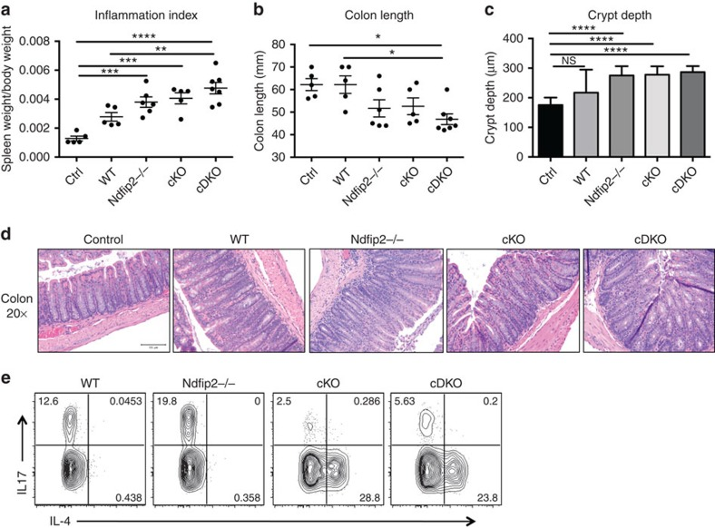 Ndfip1/Ndfip2-deficient CD4+ T cells cause increased colitis. ( a – e ) 0.5 × 10 6 sorted naive CD4+ T cells from WT, Ndfip2 −/−, cKO and cDKO mice were transferred into 6-week-old Rag1 −/− recipients. Mice were weighed twice weekly and killed 6 weeks after transfer when 20% weight loss was observed in multiple mice. Spleen weight and body weight were compared to generate an inflammation index ( a ) and colons were measured ( b ). H E-stained sections of the distal colon were imaged on the × 20 objective, and crypt depth was quantified ( c , d ). Splenocytes were stained for intracellular IL-4 and IL-17 after ex vivo stimulation with PMA/ionomycin in the presence of BFA, and analysed by flow cytometry ( e ). Previously gated on live singlets, CD4+, dump gate-. Quantifications shown ±s.e.m. n =5–7 mice. Control (ctrl) mice did not receive T cells. P values calculated by ordinary one-way ANOVA with Holm–Sidak test for multiple comparisons: * P