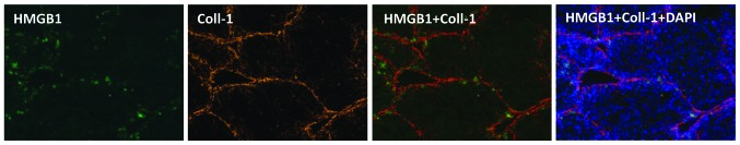 Distribution of <t>HMGB1</t> is in accordance with that of <t>type</t> I collagen in fibrotic mice. Expression levels of HMGB1 were detected using immunofluorescence. Representative HMGB1 staining of all groups is shown (Original magnification, ×200). HMGB1, high-mobility group box 1; Coll-1, type I collagen.