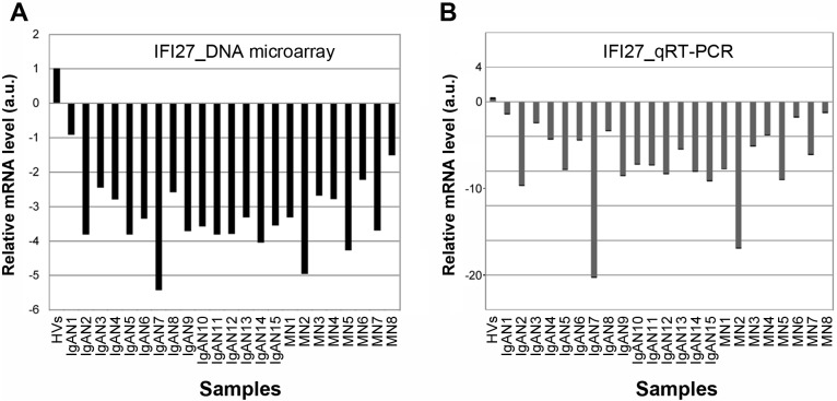 Comparison of DNA microarray and qRT-PCR data. (A, B) Relative IFI27 mRNA levels for individual IgAN and MN patients determined by DNA microarray (A) or qRT-PCR (B) are shown by box graphs. Vertical axis indicates the mRNA level (arbitrary units: a.u.) relative to the value in HVs, which was fixed at 1.0 a.u.