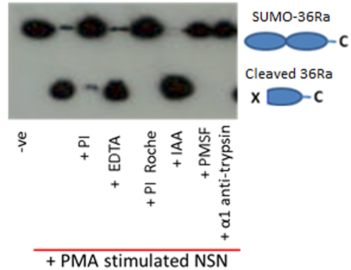 IL-36Ra cleavage by activated PMN supernatant is prevented by serine protease inhibitors. SUMO tagged IL-36Ra was incubated with supernatant from PMNs stimulated with PMA for 1 hour at 37 °C. Incubation was performed in the presence or absence of a range of protease inhibitors. PI = complete protease inhibitor cocktail (Roche), EDTA = Ethylenediaminetetraacetic acid, inhibitor of proteases where a metal ion is required for cleavage, PI Roche = complete ultra-protease inhibitor cocktail which includes aspartic proteases (Roche), IAA = iodoacetic acid a pan cysteine protease inhibitor, PMSF = phenylmethylsulfonyl fluoride a pan serine protease inhibitor, α1 anti-trypsin is another pan serine protease inhibitor. Samples were then analysed using WB.