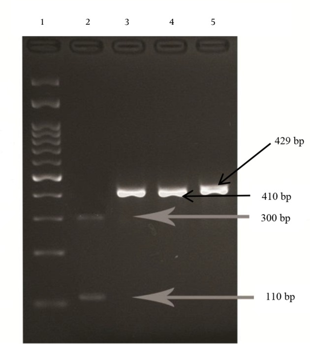 Gel Electrophoresis of Digested 429 bp Polymerase Chain Reaction Product of 23S rRNA Gene With <t>BsaI</t> and MboII Enzymes Lane 1, DNA ladder (100 bp); Lane 2, clarithromycin resistant strain digested with BsaI at two sites; Lane 3 and 4, wild types of H. pylori (susceptible to clarithromycin) digested with BsaI, with one digestion site; Lane 5, wild type (susceptible to clarithromycin) treated with MboII with no digestion site.