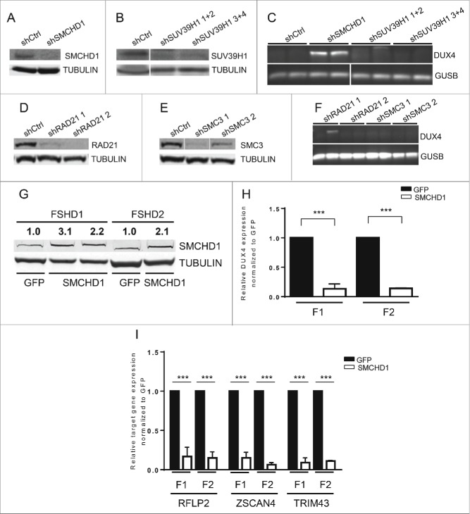 SMCHD1, but not SUV39H1 and Cohesin, regulates DUX4 expression. Western blot confirmation of ( A ) SMCHD1, ( B ) SUV39H1, ( D ) RAD21, and E ) SMC3 knockdown in control myotubes expressing the indicated lentiviral transduced shRNAs. Tubulin was used as a loading control. Representative blots of at least duplicate experiments are shown. ( C , F ) Standard gel electrophoresis analysis of DUX4 expression upon lentiviral knockdown of SMCHD1, SUV39H1, RAD21 and SMC3 in control myotubes. Only depletion of SMCHD1 resulted in reproducible activation of DUX4 transcription. Representative gel photos are shown of at least duplicate experiments. The PCR fragment visible in one RAD21 knockdown was sequenced and shown to be the product of an a-specific amplification. ( G ) Western blot analysis confirms a 2-3 fold increase of SMCHD1 expression upon its lentiviral transduction in 2 FSHD1 and 1 FSHD2 myotube cultures. GFP transduced myotubes served as a negative control. Numbers indicate normalized relative expression levels of SMCHD1 using Tubulin as a loading control followed by setting normalized SMCHD1 levels of GFP transduced samples (only expressing endogenous SMCHD1) to 1. ( H ) Expression levels of DUX4 were significantly reduced upon ectopic expression of SMCHD1 in 2 FSHD1 and 2 FSHD2 myotube cultures. Relative DUX4 expression was calculated for each sample by normalization to GUSB and GAPDH housekeeping genes. Bars show values of each samples adjusted to the expression value of GFP transduced sample as 1. ( I ) Expression levels of the DUX4 target genes RFPL2, ZSCAN4, and TRIM43 showed a significant reduction upon ectopic expression of SMCHD1 in 2 FSHD1 and 2 FSHD2 myotubes, concordant with decreased DUX4 protein expression. Expression levels were normalized as described for panel Figure 1A . For panel H, I: Error bars display SD and significance was calculated using a 2-tailed Student's t-test. All P