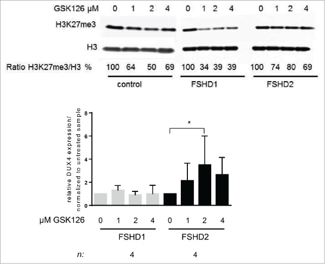 Treatment of FSHD2 myotube cultures with EZH2 inhibitor GSK126 increases DUX4 levels. ( A ) Western blot analysis of control, FSHD1, and FSHD2 myotube samples after treatment with 0, 1, 2, and 4 μM GSK126. Blots were probed with H3K27me3 antibody and H3 antibody as loading control. Shown are the reduced ratios of H3K27me3:H3 signal intensities in samples treated with GSK126 compared to the untreated sample as a result of EZH2 inhibition. ( B ) qRT-PCR analysis of DUX4 expression in FSHD1 and FSHD2 myotubes after GSK126 treatment shows that relative DUX4 transcript levels are significantly increased in FSHD2 samples treated with 2 μM GSK126 but not in FSHD1 myotubes. Graph shows the results of 4 FSHD1 and 4 FSHD2 cell lines. Results of control cell lines are not shown, DUX4 transcript was not detectable. Error bars show SD, n indicates number of independent cell lines, and significance was tested by 2-way ANOVA followed by Bonferroni multiple comparison test. *= P