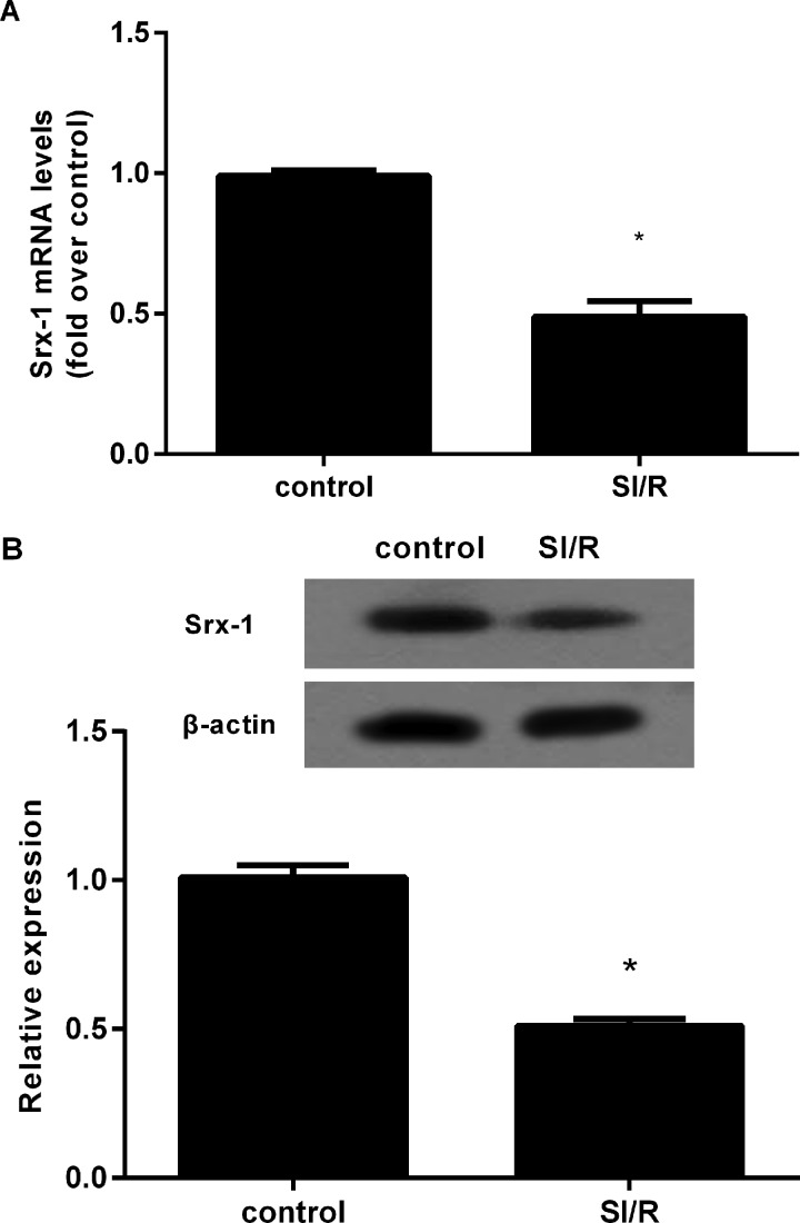 Down-regulation of Srx-1 in H9c2 cardiomyocytes under SI/R treatment The H9c2 cells were exposed to hypoxia for 10 h and then reoxygenated for 3 h. ( A ) The mRNA levels were detected by qRT-PCR. ( B ) The protein expression of Srx-1 was determined by western blotting. * P